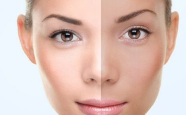 Whitening, Brightening, and Bleaching